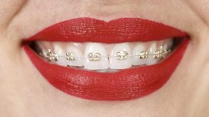 iconix braces